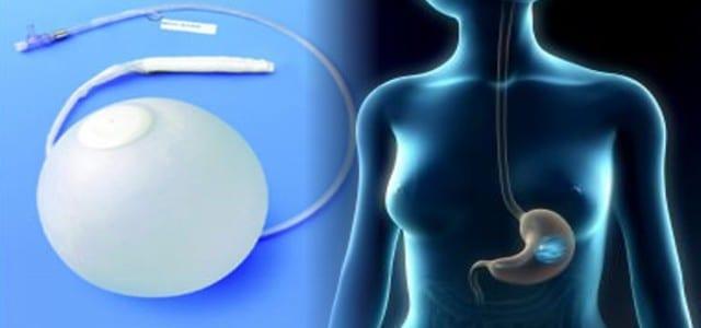 intragastric balloon system safety alert